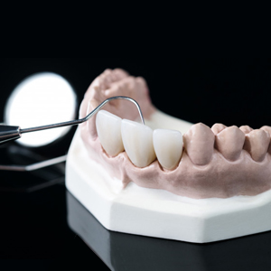 Prosthodontics-–-Crowns-&-Bridges