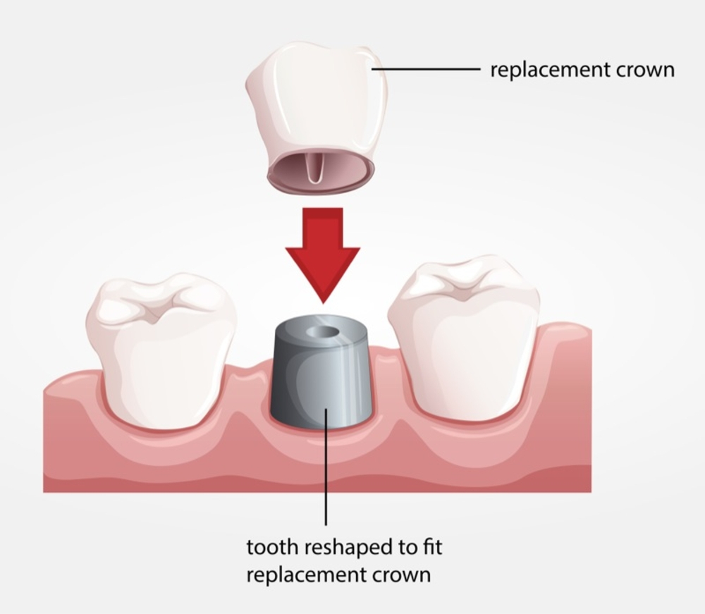 Are Dental Crowns Painful?