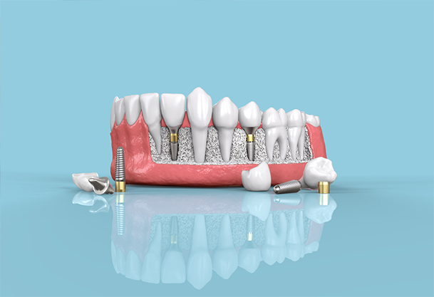 Effective Tips to Look After Your Dental Implants